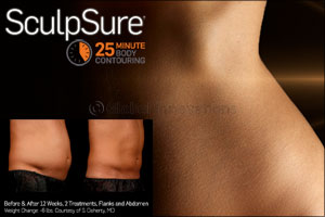 Incorporate SculpSure, the Non-Surgical Fat Treatment, Into Your Busy Schedule